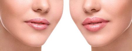 Resultado de imagen de aumento labios